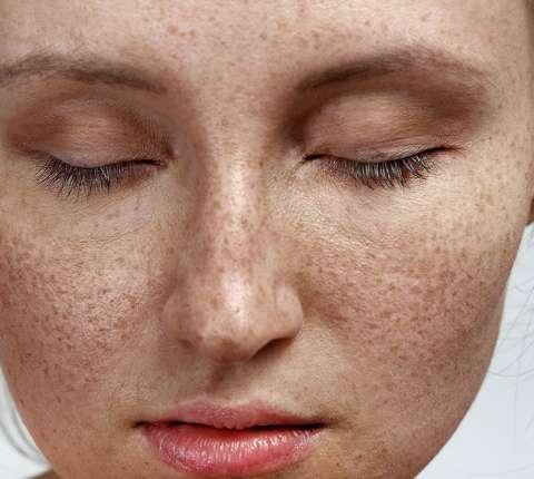 Pora zadbać o skórę po lecie